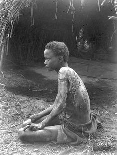 """""""Jeune fille atteinte d'une maladie de la peau (espèce de lèpre)."""" Photographer: François Léopold Michel (°1855 - †1932)"""