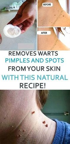 REMOVES WARTS, PIMPLES AND SPOTS FROM YOUR SKIN WITH THIS NATURAL RECIPE!