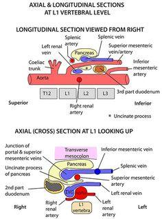 Instant Anatomy - Abdomen - Vertebral Levels - Longitudinal section posterior abdominal wall Vascular Ultrasound, Ultrasound Sonography, Aorta Abdominal, Ultrasound School, Ultrasound Technician, Interventional Radiology, Radiology Imaging, Ultrasound Pictures, Ultrasound Gender