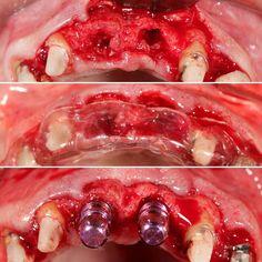 #advanceimplantdentistry Sector Anterior: No apto para principiantes. No apto para solo dos manos y dos ojos. No apto para un solo criterio La planificación y #comunicación perio-prosto junto a la utilización de los diferentes medios y herramientas de #comunicación es la clave del éxito. #implantdentistry #periodoncia #periodontics #implantesdentales #estetica #esthetics #odontologia #odontologo #dentist #dentistry by cabetank Our General Dentistry Page…