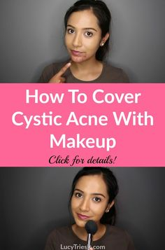 Skin Acne Remedies Cystic acne can be very frustrating. Luckily, there is an effective way to cover cystic acne with makeup and I'm going to show you how! Cystic Acne On Chin, Cystic Pimple, Cystic Acne Remedies, Natural Acne Remedies, Pimples, Cystic Acne Treatment, Scar Treatment, Hormonal Acne, Makeup