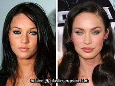 Before and After: cosmetic surgery