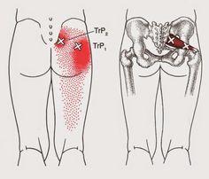 Santa Barbara Massage Therapy, Balance in Motion - Sciatica or Piriformis Syndrome