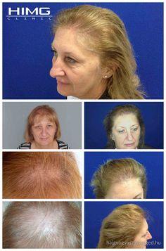 M. Erzsébet - 3500 hajszál beültetése - HIMG Klinika  A haj hiánya. A kontraszt hiánya. Egy a bonyolult eseteknek, mert így dolgozni kellett a donor területén is. Erzsébet alopecia szenved, a haját diffúzan vesztette el mindenhol. Hosszú hajba végzett, egynapos beavatkozás. Erzsébet kimondottan örült az eredménynek, amit a HIMG Klinika orvos csapatától kapott.  http://hajgyogyaszatszeged.hu/
