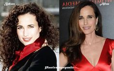 Andie Macdowell Plastic Surgery Before And After #celebrity #plasticsurgerysmile  #AndieMacdowell
