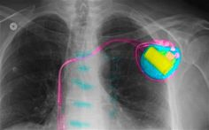 As a result, patients are forced back into hospital for procedures to have the batteries replaced, putting them at risk of serious and life-threatening infection, cardiologists have warned in the BMJ. Safety, Health, Security Guard, Health Care, Salud