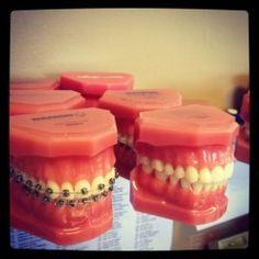 How will your #tweens' life change with braces? @KidzVuz.com @SAuerswald