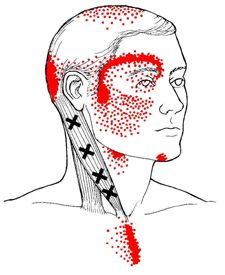 Trying to learn more upper body trigger points, to keep my migraines in check.