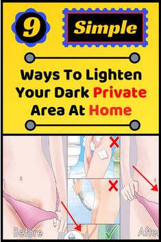 The private area in any human is one of the most sensitive areas and gradualy gets darker mainly due Shaved Privates, Food Service Jobs, How To Get Rid, How To Remove, Face Hair Removal, Daily Beauty Tips, Private Parts, Side Effects, Dark Skin