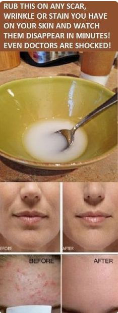 Rub this on any scar, wrinkle or stain you have on your skin and watch them disappear in minutes. The main ingredient of this incredible solution is honey, a sweet natural nectar produced by bees w… Beauty Care, Diy Beauty, Beauty Skin, Beauty Hacks, Beauty Box, Beauty Ideas, Beauty Makeup, Face Care, Body Care