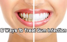 6 Ways To Treat Gum Infection