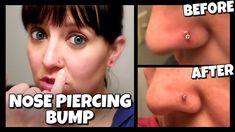 Keloid Nose Piercing Piercing Piercing Keloid Nose Piercing