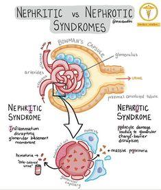 Medicine Notes, Medicine Student, Nephrotic Syndrome, Nursing School Notes, Ob Nursing, Nursing Schools, Medical Mnemonics, Pharmacology Nursing, Material Didático