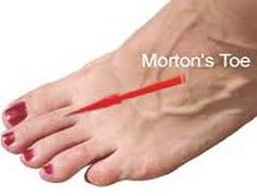 Are you facing Mortons Toe Related Problem. And Want To Solve this problem, Don't worry come our website and get solution. Runners Toe, Morton's Toe, Big Toe, Don't Worry, Massage, Wellness, Website, Massage Therapy