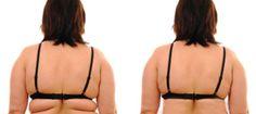 Cómo deshacerse totalmente de la grasa dorsal en 90 días sinpastillas para perder peso oLipo.