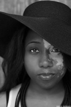 This woman has vitiligo, the loss of pigmentation of the skin and sometimes hair.  Any race can have this condition.  Famous sufferers are Michael Jackson, actress Holly Marie Combs and Andy Warhol (his wasn't very noticeable because his skin was so fair).