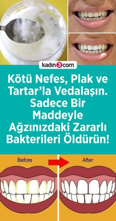 Say goodbye to Bad Breath Plaque and Tartar. Just One Item - Kötü Nefes Plak ve Tartarla V Baby Shampoo, Bad Breath, Oral Health, Easy Projects, Hair And Nails, Gifts For Women, Dental, Improve Yourself, Beauty Hacks