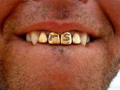Стоматология докторов Копыловых.: Украшения для зубов.