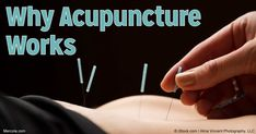 There are many health benefits of acupuncture to your body. Find out how it works and how it influences your body on multiple levels. http://articles.mercola.com/sites/articles/archive/2016/06/23/how-does-acupuncture-work.aspx #AcupunctureBenefits