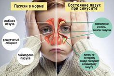 Эти средства очень эффективны и не имеют побочных действий! Гайморит — это очень опасное заболевание и приносит много неудобств и страданий. К сожалению, эта инфекция является довольно распространенной. Синус инфекции — это воспаление, которое поражает слизистую оболочку пазухи. Она может быть