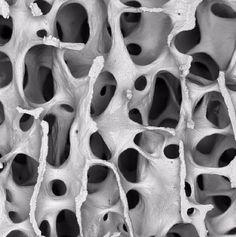 Human bone under Scanning Electron Microscope