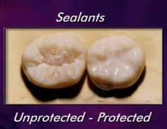 Know all about dental sealants. Discover how they are applied and why they are important to help improve your tooth's defenses against plaque and cavities.