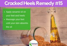 Cracked feet are unsightly and painful. People suffering from cracked feet or heel fissures usually hide their feet in stuffy shoes. Aside from the physical embarrassment of the condition, most people who have dry feet Dry Cracked Heels, Cracked Feet, Heel Fissures, Cracked Heel Remedies, Soft Feet, Natural Moisturizer, Neem Oil, Tea Tree Oil, Feet Care