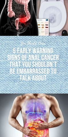 5 Early Warning Signs Of Anal Cancer That You Shouldn't Be Embarrassed to Talk About - Imágenes efectivas que le proporcionamos sobre homemade bread Una imagen de alta calidad puede dec - Health And Fitness Articles, Health And Nutrition, Health Heal, Wellness Fitness, Fitness Diet, Health And Beauty Tips, Health Tips, Glowing Skin Diet, One Punch Man Workout