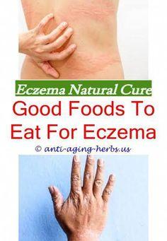 Can You Put Calamine Lotion On Eczema Vitamins For Eczema