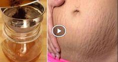 Hanımlar yırtılmalar hamilelikten ve kilo alıp vermeden genellikle olur . hanımlar losyonlar kremler lazer cerrahisi kimyasal peelingler iyi sonuç alınmamaktadır cildin ton olan güneş ış
