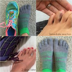 What helped me run through toe pain - shoe lacing to relieve foot pain Shoe Lacing, Broken Toe, Running For Beginners, Foot Pain, Walking, Health, Lace, Sneakers, Fitness