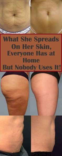 Coffee grounds are an excellent remedy for cellulite. It' no wonder almost every anti-cellulite cream and gel contains caffeine. Health And Beauty Tips, Health Tips, Health And Wellness, Health Fitness, Beauty Tips And Tricks, Health Benefits, Health Diary, Home Beauty Tips, Diy Beauty