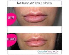 Claudia Toro MD | Estéticas, Medicina estética Bogotá Anti Aging Medicine, Facial Rejuvenation, Spa, Health, Medicine, Lip Augmentation, Unwanted Hair, Radio Frequency, Health Care