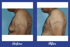 Men can easily get the best solution for their big chest size with gynecomastia surgery only from the VJ Clinics. You can saw teh image of one of our patient who gets the successful treatment from our clinic.