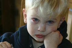 HBD Health Remedy: CONJUNCTIVITIS ( PINKEYE)