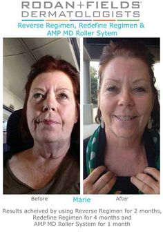 Changing Skin . . . Changing Lives! Looking Good Marie! <3