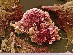 Así se ven las células pulmonares cancerígenas a través de un microscopio electrónico de barrido