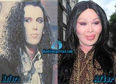 Pete Burns Plastic Surgery Gone Wrong | http://plasticsurgeryfact.com/top-10-pictures-of-celebrity-plastic-surgery-gone-wrong/
