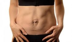 Many women experience diastasis recti abdominis, or separated abdominal muscles, after pregnancy. most find that their muscles pull together again, Oblique Workout, Abs Workout Video, Ab Workout Men, Abs Workout Routines, Ab Workout For Women At Home, Workout Videos For Women, Ab Workout At Home, Hernia Exercises, Umbilical Hernia