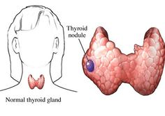 Hypothyroid disorders basically ensues through the inflammation of the thyroid gland and through insufficient hormones produced by thyroid gland. The symptoms of hypothyroid are bone aches, feeling depression, coldness, in women it troubles with heavy menstrual flow. Thyroid treatment in homeopathy will regain normal hormone production. Homeocare International is a world class homeopathy clinic. It provides advanced homeopathy treatment to cure all kinds of health diseases.