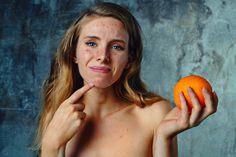 Pokud trpíte obzvláště vážným hormonálním akné, možná si začnete říkat, že něco není vpořádku. A je to opravdu tak. Je mnoho faktorů, proč vzniká akné, jedním znich je nesprávné stravování. Mnoho lidí vám ze zkušenosti poví, že po kompletní změně jídelníčku, se jejich pleť vyčistila a zahojila. Nikdo však nejsme perfektní a můžeme rychle zpátky …