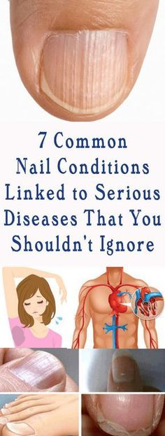 7 Common Nail Conditions Linked to Serious Diseases That You Shouldn't Ignore!