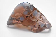 進化する3Dプリンター、内臓模型で手術の予行が可能に・・・写真は患者の肝臓の3Dモデル