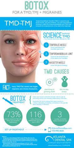 Treat TMJ with Botox | Treat migraines with Botox