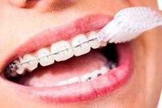 Quer ficar menos tempo com aparelho? Escove bem os dentes