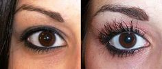 Grow Longer, Thicker, Darker Lashes with Latisse! Noticeable results in as little as 4 weeks and full results in just 16 weeks- Latisse has one of the highest patient satisfaction rates of all cosmetic products. With over 3 million, Latisse is the ONLY FDA approved product to transform your lashes in 3 ways!!!