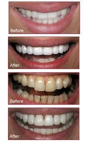 Great teeth can be your greatest asset. Learn more about getting a great smile at http://www.18004Smiles.Com
