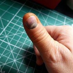 Qdo a artesã é destra, está entupida de trabalho e fecha o polegar direito na porta do carro e fica assim... c o dedo inchado, latejando e não consegue pregar um botão!🙈🙈 #danivanessaatelier #amofeltro #cute  #feltro  #ilovemyjob #love #presentes #positividade #feltragem #feltrando  #felt #artesanatoemfeltro #adorofeltro  #minimosdetalhes #lembrancinhas #costurando  #handmade #believeinyourself #feltrosantafe #madehand #sewing #feltromania #amornosdetalhes