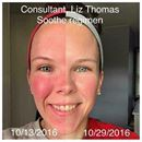 Hold the wine!!!  This girly no longer has to, since she's using Soothe!  Do you have sensitive skin? Does wine give you that red flush face? Let's put this holiday seasons' skin aggressors to the test with a regimen that's guaranteed to give you noticeable results or you get your money back!  #soothe #legacybyheather