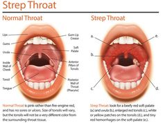 Can You Cure Strep Throat Naturally